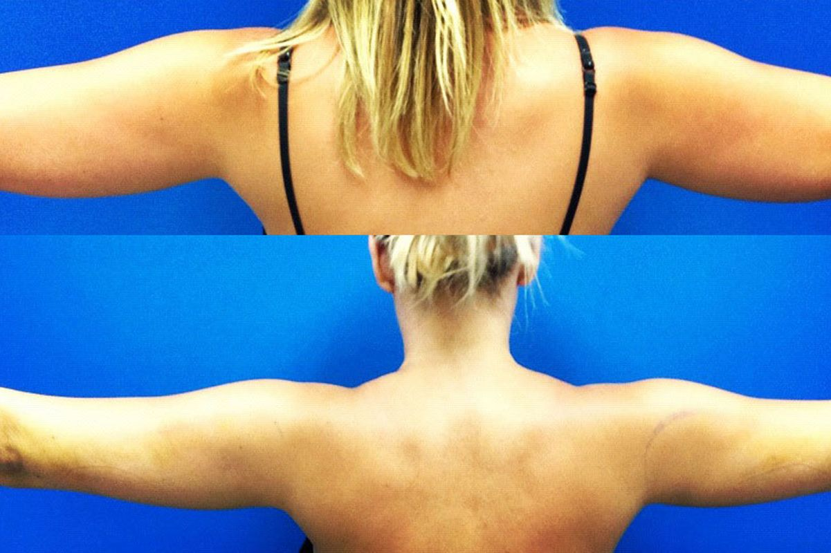 Achieve your dream body with Body sculpting